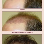 Hair Transplant Services to Help You Feel Your Best