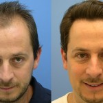 Hair Restoration Can Change the Way You Look AND Feel