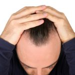 Hair Loss Treatments That Thankfully Didn't Catch On